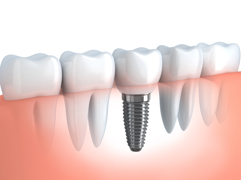 Dental Implants in Southend-On-Sea