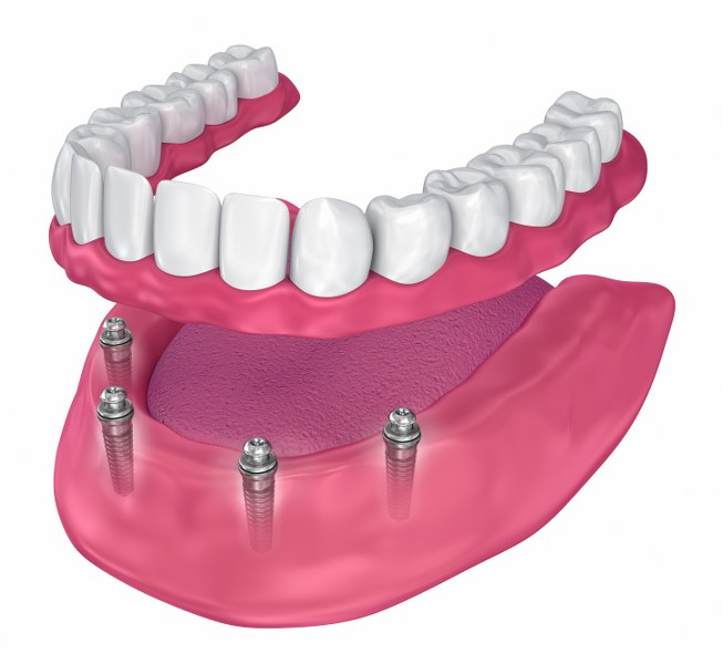 All On 4 Implants in Southend-On-Sea